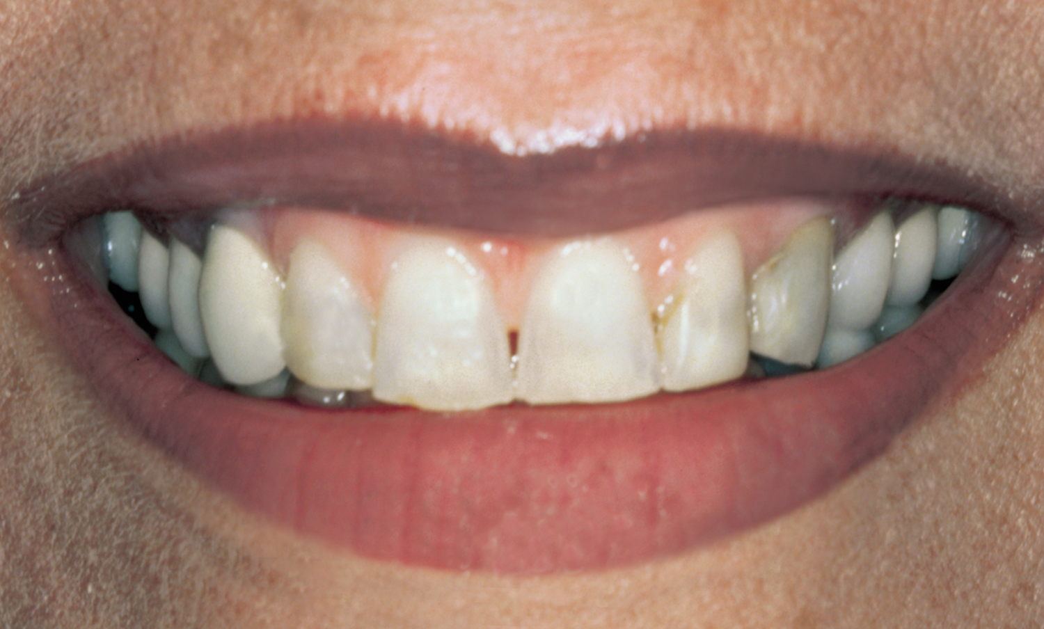Full-Mouth Rehabilitation before & after